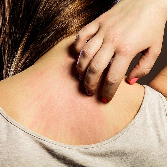 Prevenirea si tratamente naturist pentru Psoriazis